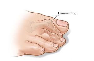hammertoe